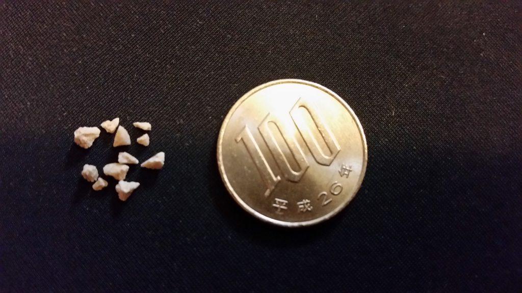 術後に尿から出てきた結石の欠片と100円玉