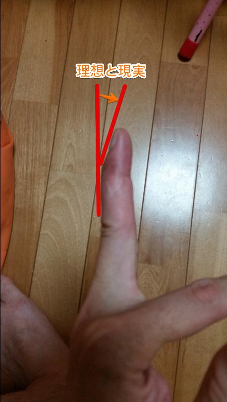 横から見たマレットフィンガー状態の中指