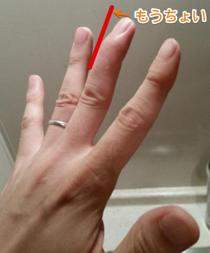 もうちょいでマレットフィンガーから完治しそうな指