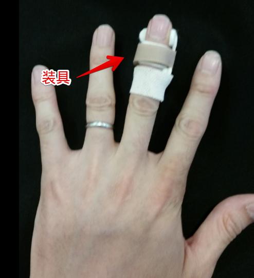 上から見た装具を装着した指