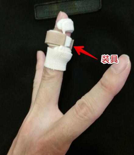 横から見た装具を装着した指